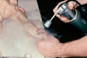 view Arnold's nitrospray unit: liquid nitrogen