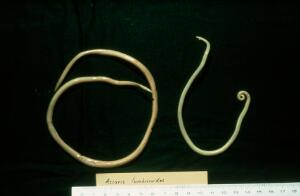 view Toxocariasis: ascaris lumbricoides worms.