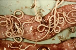 view Small intestine of dog: toxocara canis worms