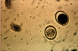 view Four nematode eggs in a faeces sample (from a