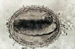 view Embryonated egg of toxocara canis (from a dog).