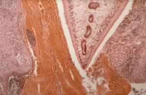 view Migrating fluke in liver parenchyma
