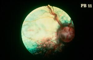 view Canine fundus - coloboma & retina detachment