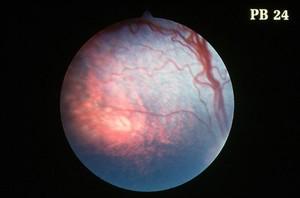 view Canine retina: choroidal hypoplasia