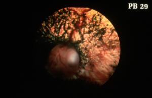 view Canine retina: typical papillary coloboma