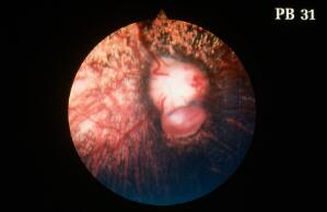view Typical peripapillary coloboma, right fundus
