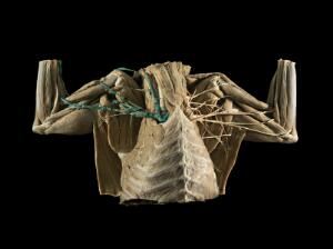 view Nerves and Vessels of the Brachial Plexus