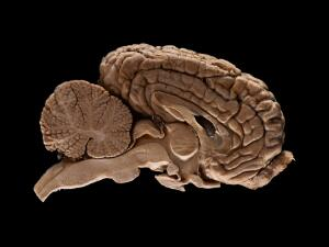 view Adult horse (equine) brain, sagittal section