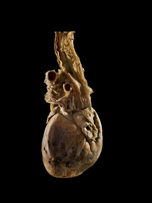 view Sword swallower's Oesophagus and Heart Piercing