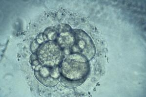 view Human embryo for IVF