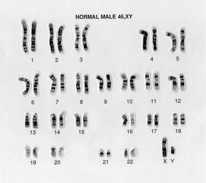 view Normal male 46,XY human karyotype