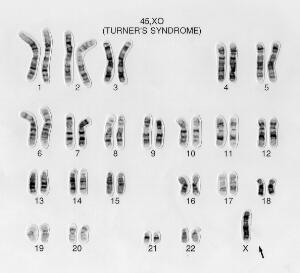 view Turner's syndrome karyotype 45,XO. This female lacks the second X chromosome present in the normal karyotype. Symptoms include short stature, neck wbbing, elbow deformity, widely spaced nipples with shield chest, primary amenorrhea, sexual infantilism and sterility. The ovaries are reduced to fibrous streaks. Also known as XO syndrome or ovarian short-stature syndrome.