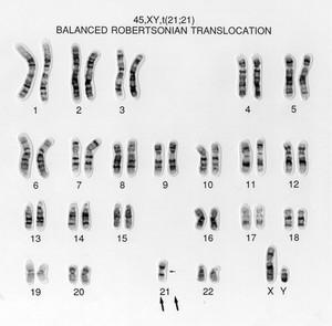 view Balanced translocation 45,XY,t(21;21)