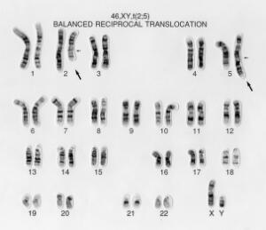 view Balanced reciprocal translocation 46,XY,t(2;5). This male has a chromosomal disorder. A chromosome 2 and a chromosome 5 have exchanged segments. The cell still contains a complete complement of