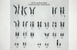 view Paracentric chromosome inversion