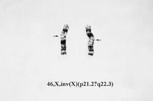 view Inversion in X chromosome