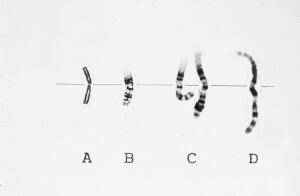 view Chromosome condensation prophase to metaphas