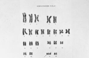 view Down's syndrome karyotype 47,XX,+21