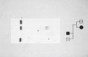 view Fragile X pedigree + rflp autoradiograph