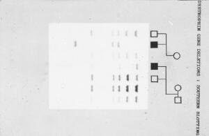 view Duchenne muscular dystrophy pedigree + rflp