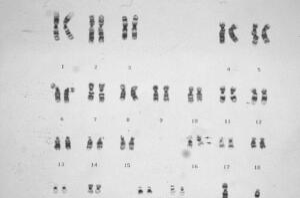view Acute myelomonocytic leukaemia +eosinophilia