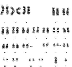 view Acute promyelocytic leukaemia karyotype