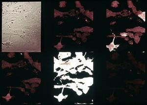 view Fibroblast responses to acetylcholine
