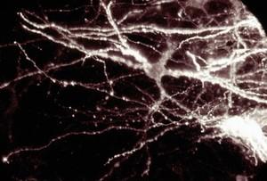 view Interneurons.