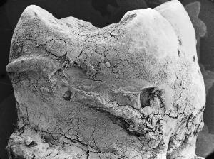 view Tooth surface, low power SEM