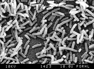 view E.coli on agar. SEM