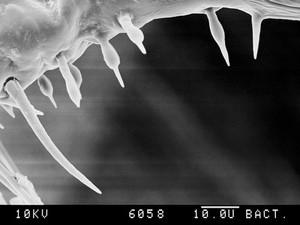 view Pubic louse, tail end, CU spikes, SEM.
