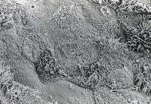 view Bronchus showing hyperplasia. SEM