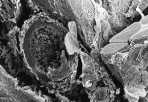 view SEM pig thigh muscle + blood vessel
