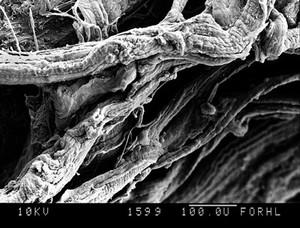 view SEM thigh muscle fibrils
