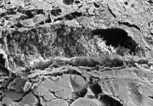 view SEM TS muscle, showing LS blood vessel