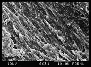 view SEM normal bone above trabecular surface