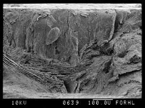 view SEM normal bone, full thickness