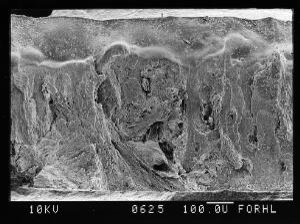view SEM normal bone, full thicknes