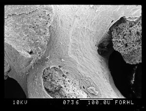 view SEM new trabeculae in osteoporotic bone