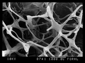 view SEM old osteoporotic bone
