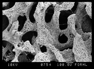 view SEM bone, rotten trabeculae (osteoporosis?)