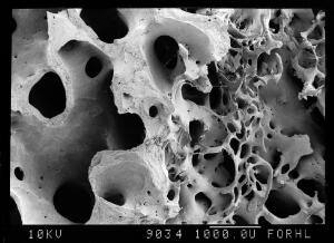view SEm old bone with hole and new trabeculae