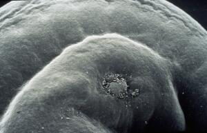 view embryo wound healing SEM