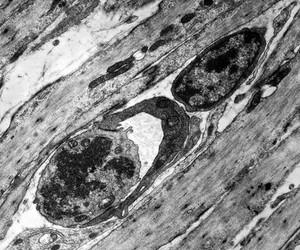 view TEM of capillary