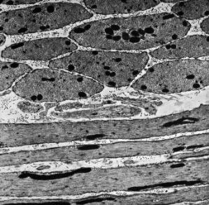 view TEM of smooth muscle