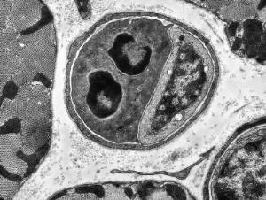 view TEM of cardiac capillary