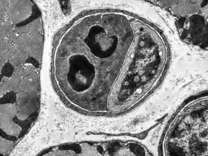 view TEM of cardiac capillary