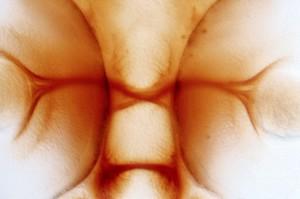 view Zebrafish optic chiasm