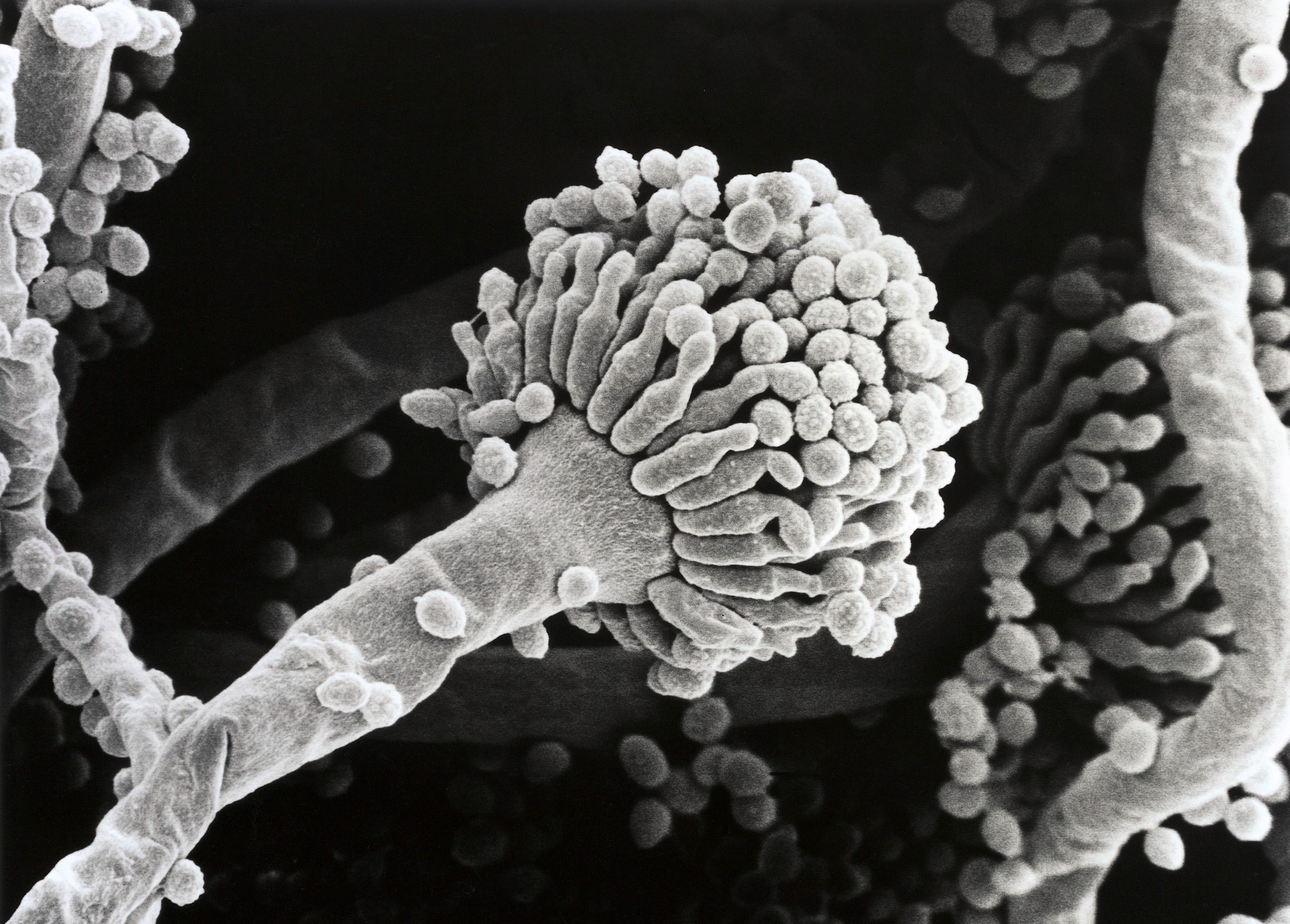 Aspergillus fumigatus, conidium, SEM | Wellcome Collection