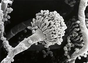 view Aspergillus fumigatus, conidium, SEM